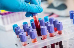 Нейросеть обучили находить признаки болезней крови
