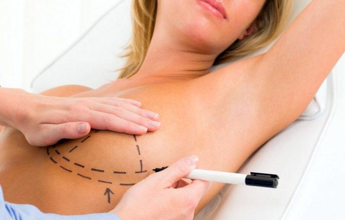 Ученые изучили последствия сохранения груди